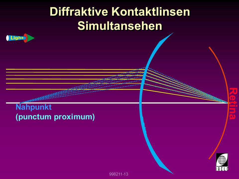 Diffraktive Kontaktlinsen Simultansehen
