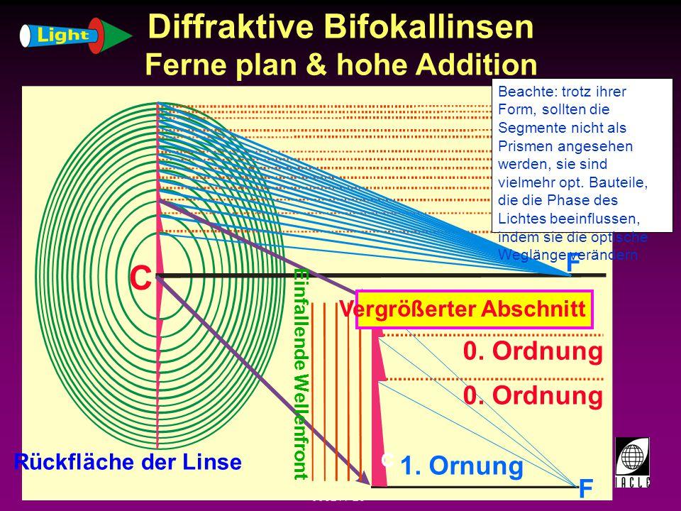 Diffraktive Bifokallinsen Ferne plan & hohe Addition