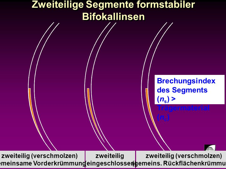 Zweiteilige Segmente formstabiler Bifokallinsen