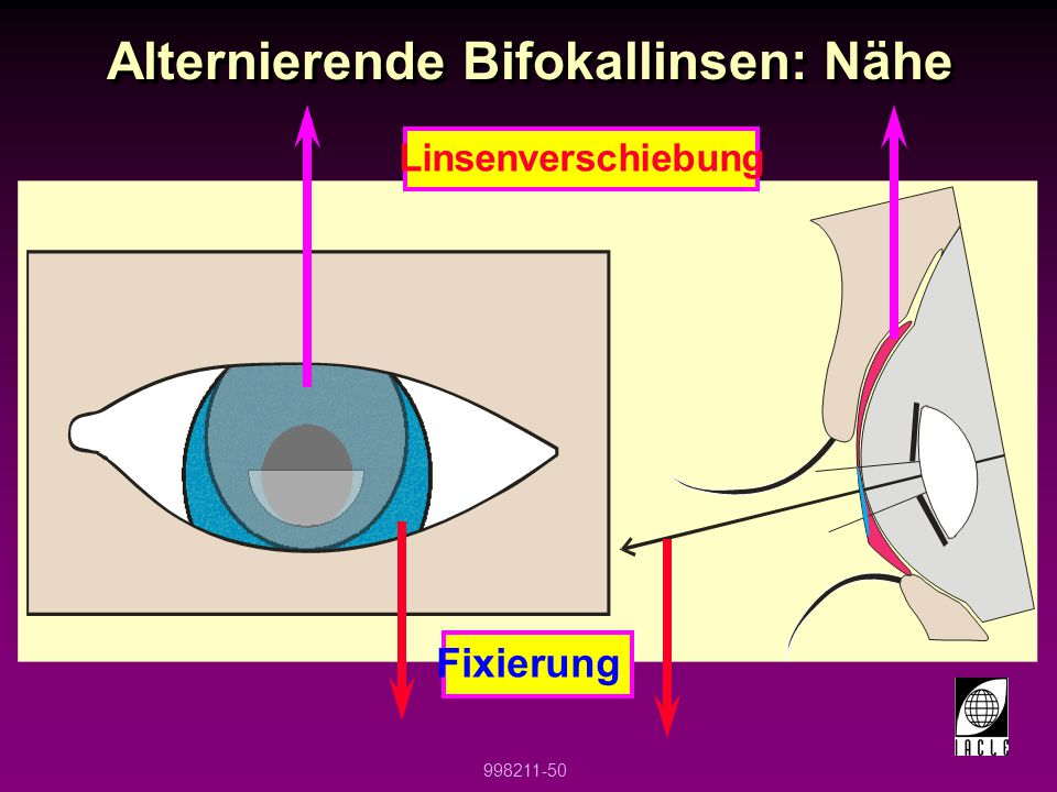 Alternierende Bifokallinsen: Nähe