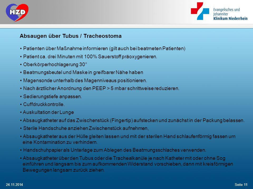Absaugen über Tubus / Tracheostoma