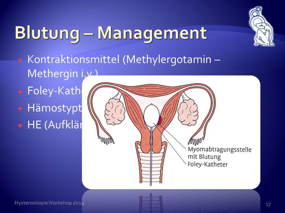 Blutung – Management Kontraktionsmittel (Methylergotamin – Methergin i.v.) Foley-Katheder intracavitär (24h)