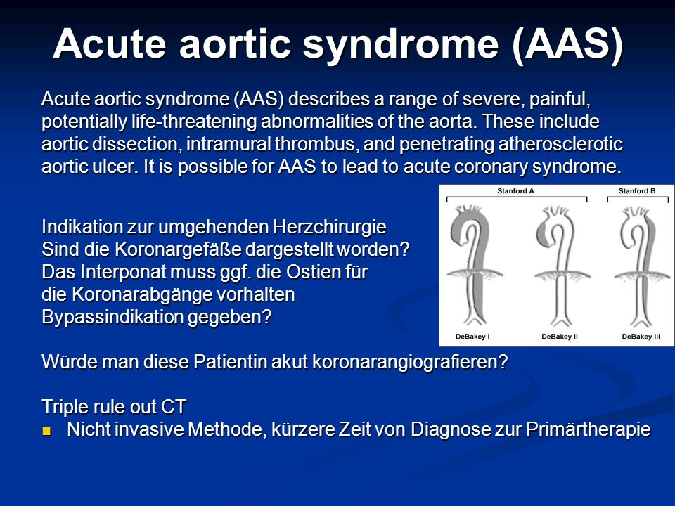 Acute aortic syndrome (AAS)