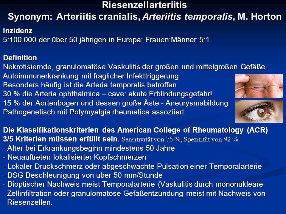 Riesenzellarteriitis Synonym: Arteriitis cranialis, Arteriitis temporalis, M. Horton