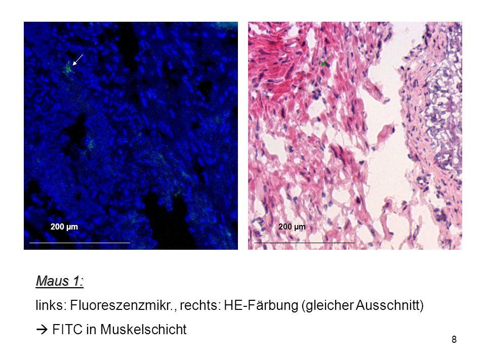 links: Fluoreszenzmikr., rechts: HE-Färbung (gleicher Ausschnitt)