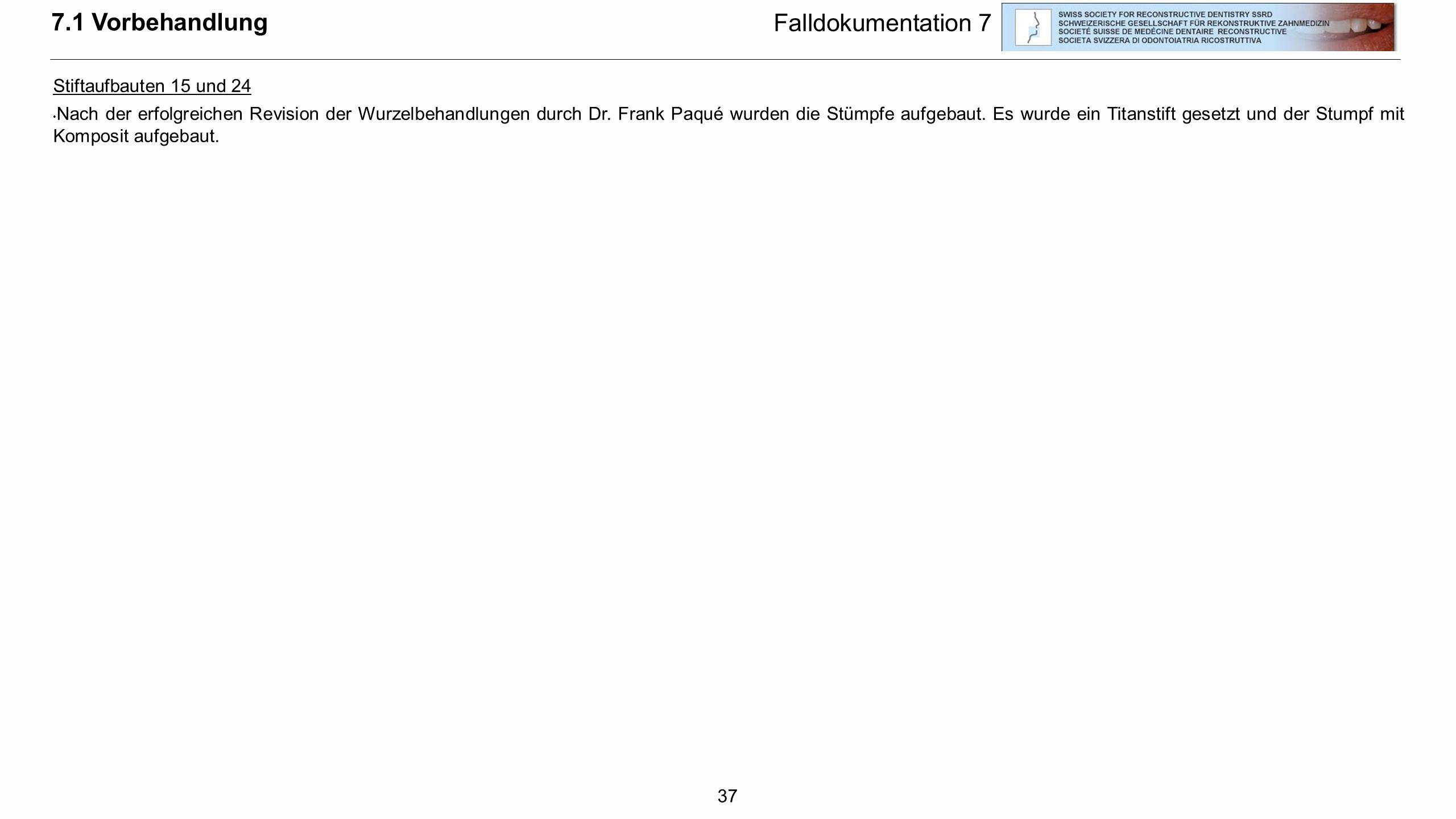 7.1 Vorbehandlung Falldokumentation 7 Stiftaufbauten 15 und 24