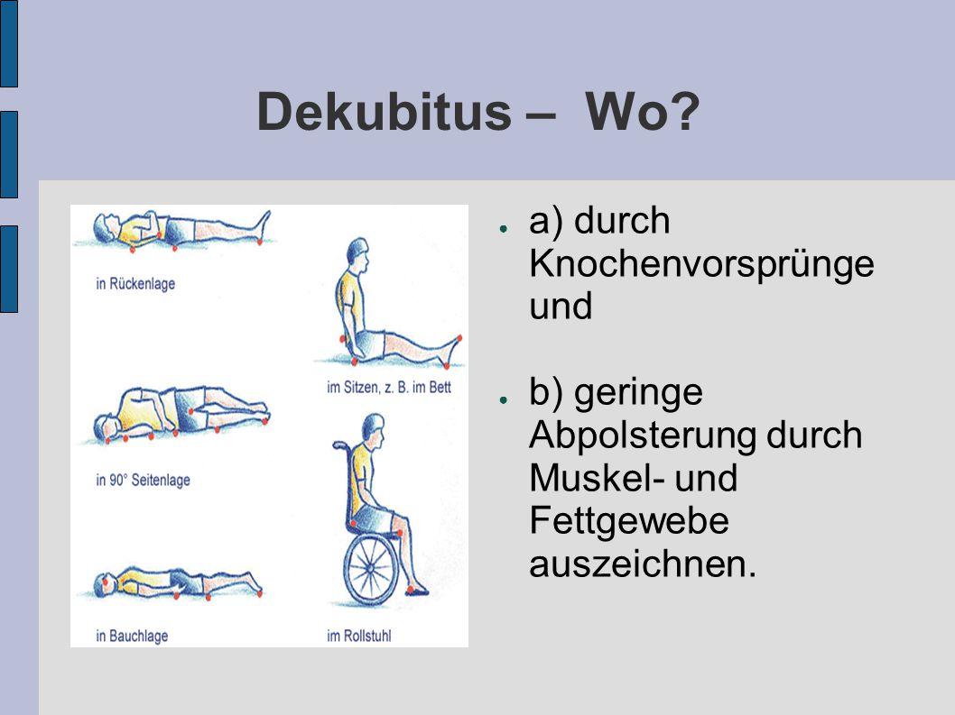 Dekubitus – Wo a) durch Knochenvorsprünge und