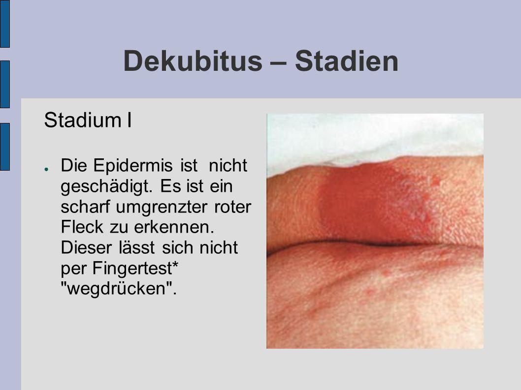 Dekubitus – Stadien Stadium I