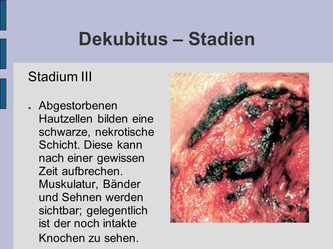 Dekubitus – Stadien Stadium III