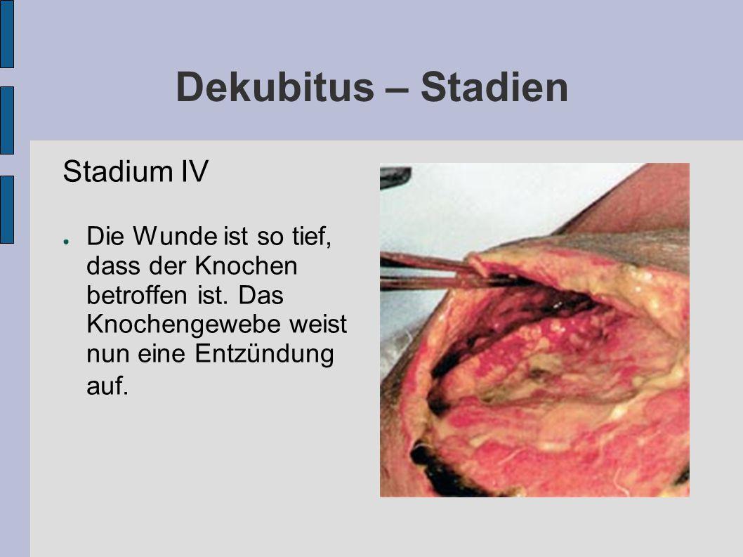 Dekubitus – Stadien Stadium IV