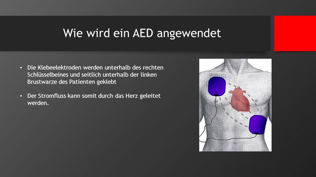 Wie wird ein AED angewendet