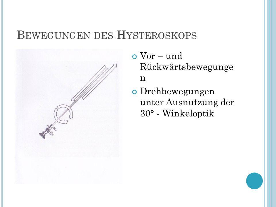 Bewegungen des Hysteroskops