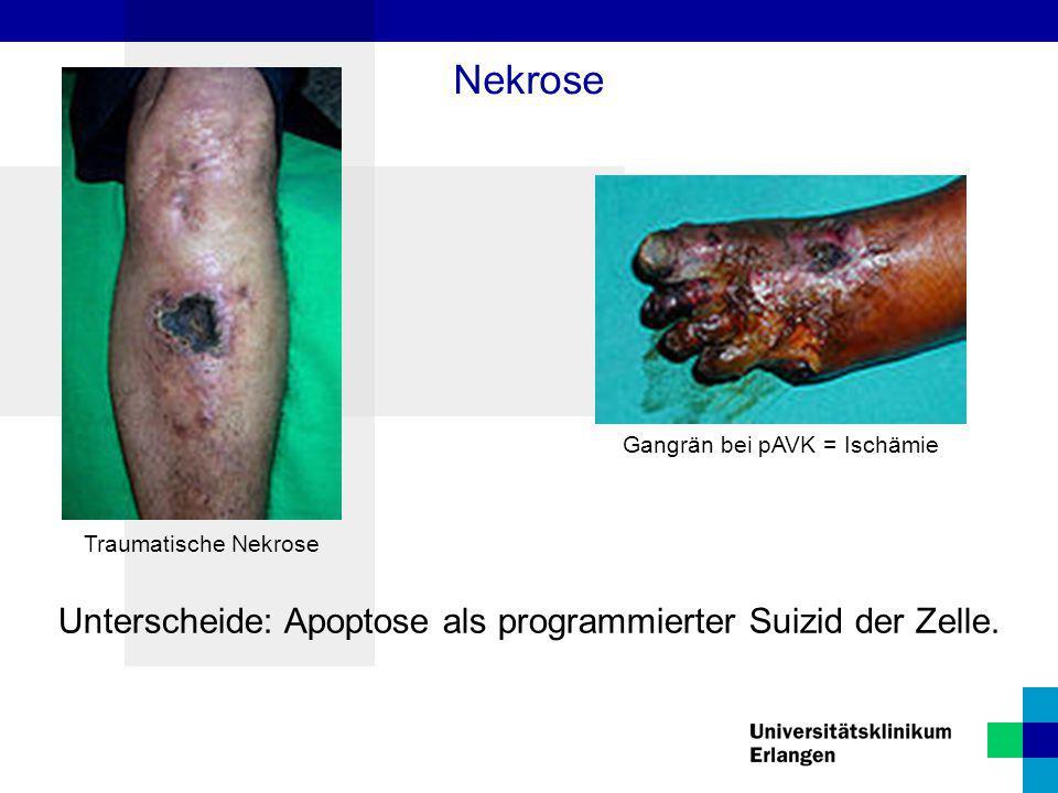 Nekrose Unterscheide: Apoptose als programmierter Suizid der Zelle.