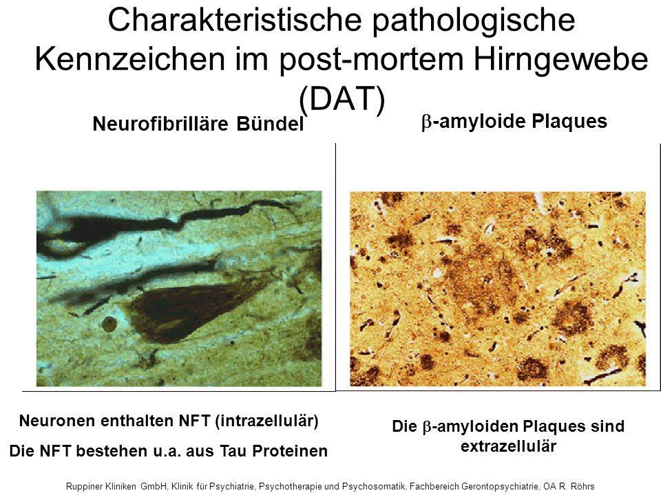 Charakteristische pathologische Kennzeichen im post-mortem Hirngewebe (DAT)