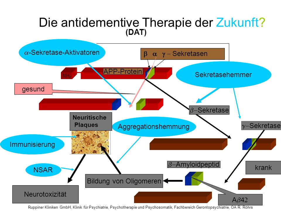 Die antidementive Therapie der Zukunft