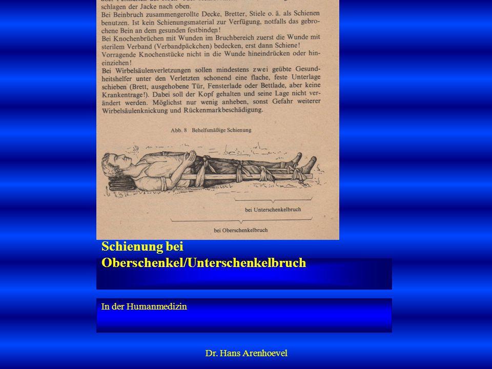Schienung bei Oberschenkel/Unterschenkelbruch