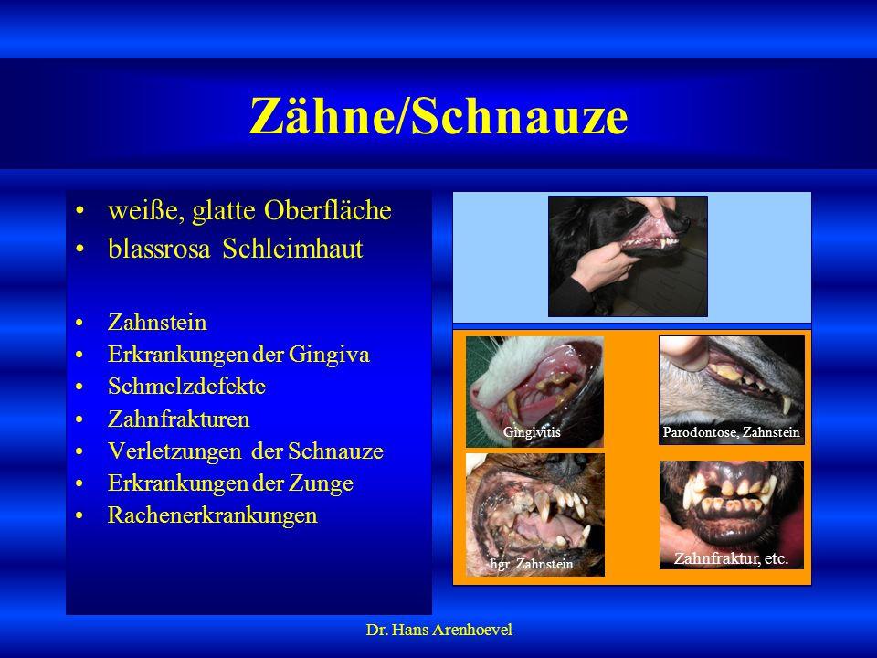 Parodontose, Zahnstein