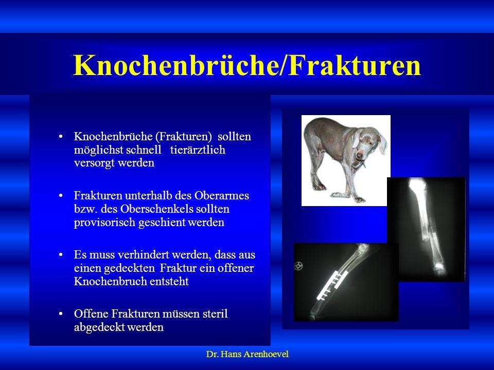 Knochenbrüche/Frakturen