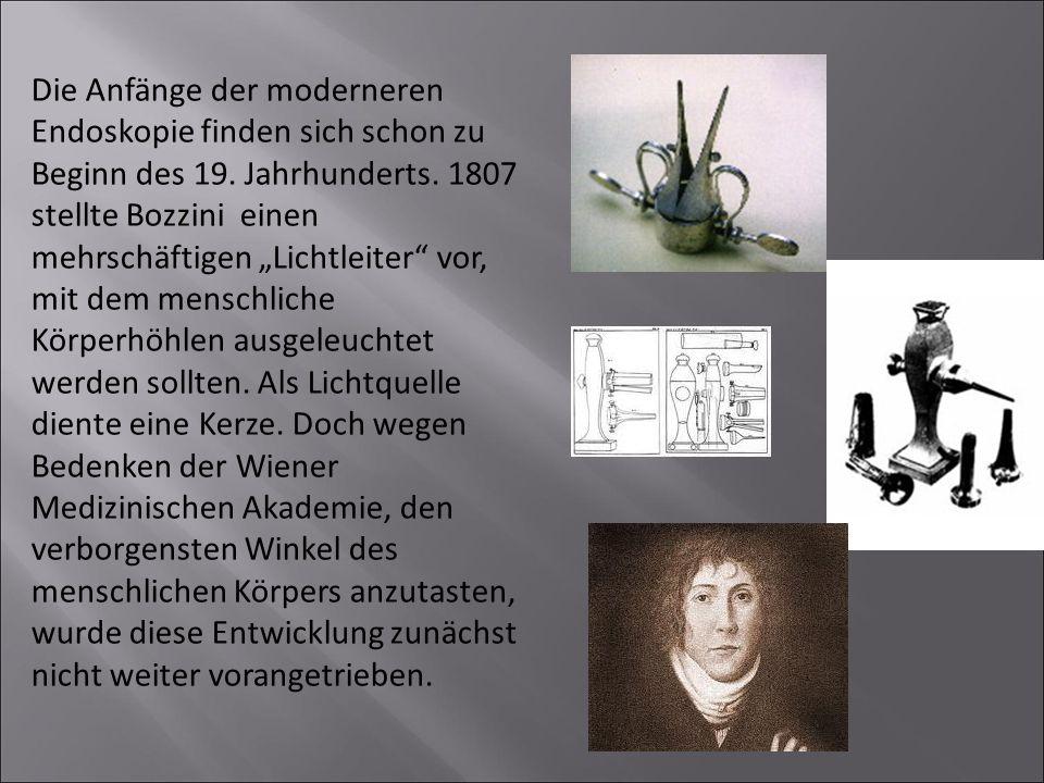 Die Anfänge der moderneren Endoskopie finden sich schon zu Beginn des 19.