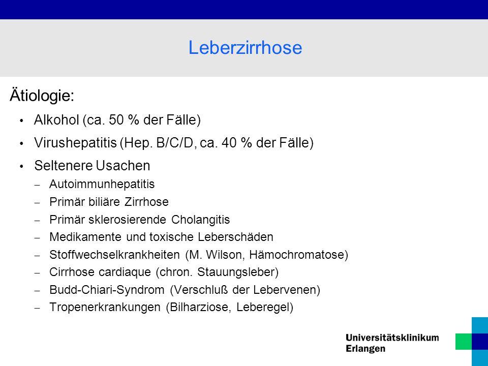 Leberzirrhose Ätiologie: Alkohol (ca. 50 % der Fälle)