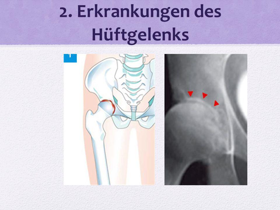 Ungewöhnlich Hüftgelenk Bilder Fotos - Menschliche Anatomie Bilder ...