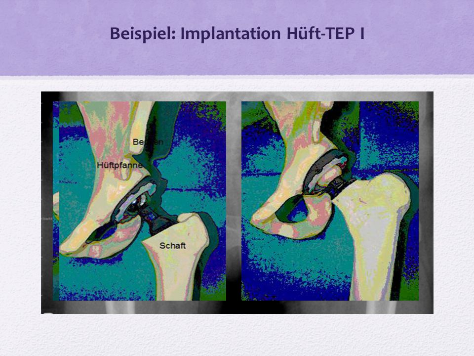 Beispiel: Implantation Hüft-TEP I