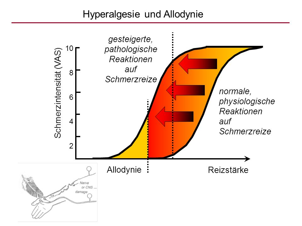 Hyperalgesie und Allodynie