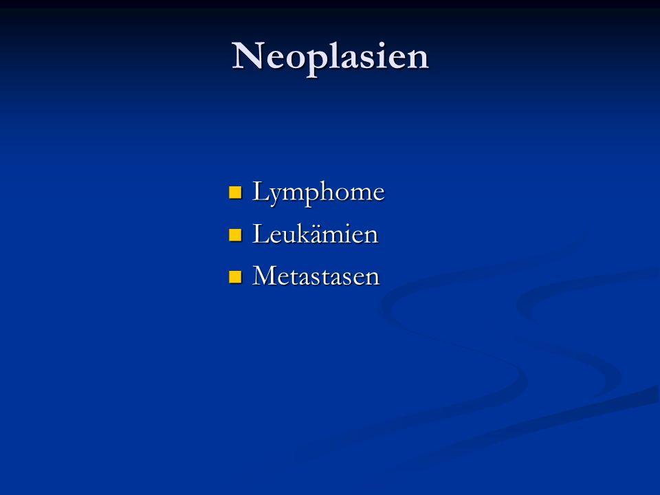 Neoplasien Lymphome Leukämien Metastasen