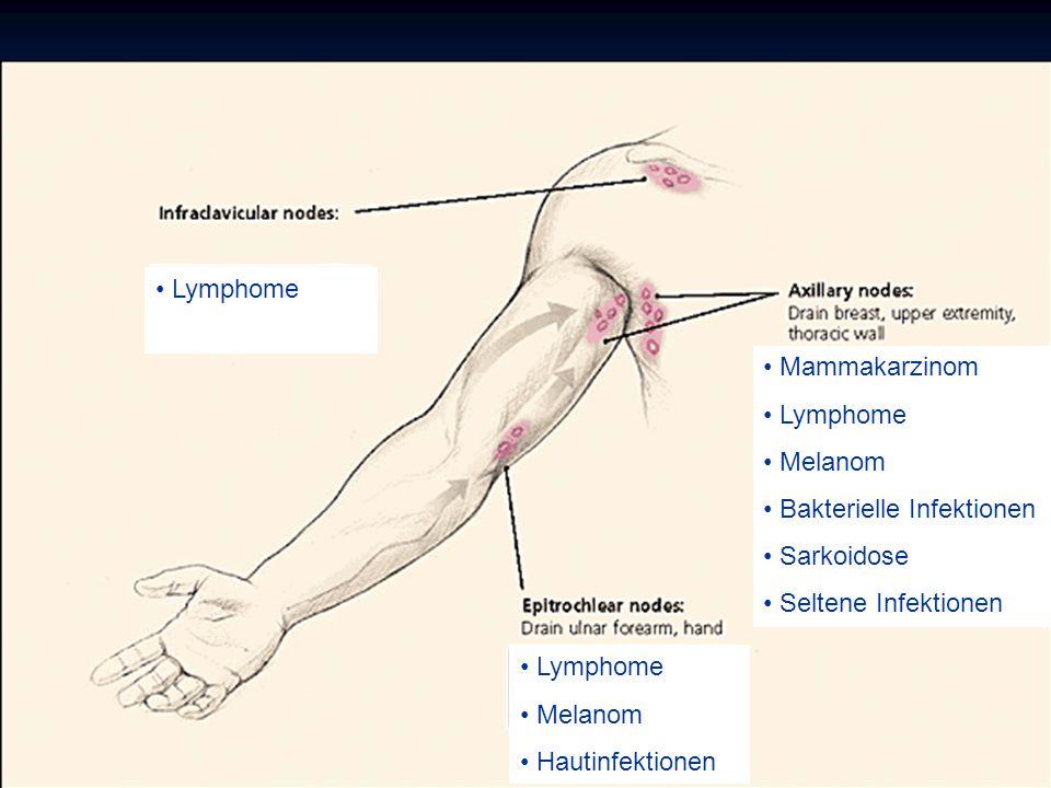 Lymphome Mammakarzinom. Lymphome. Melanom. Bakterielle Infektionen. Sarkoidose. Seltene Infektionen.