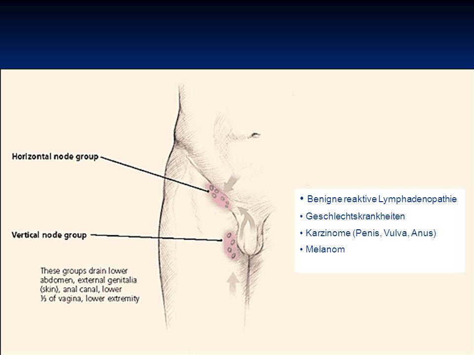 Benigne reaktive Lymphadenopathie