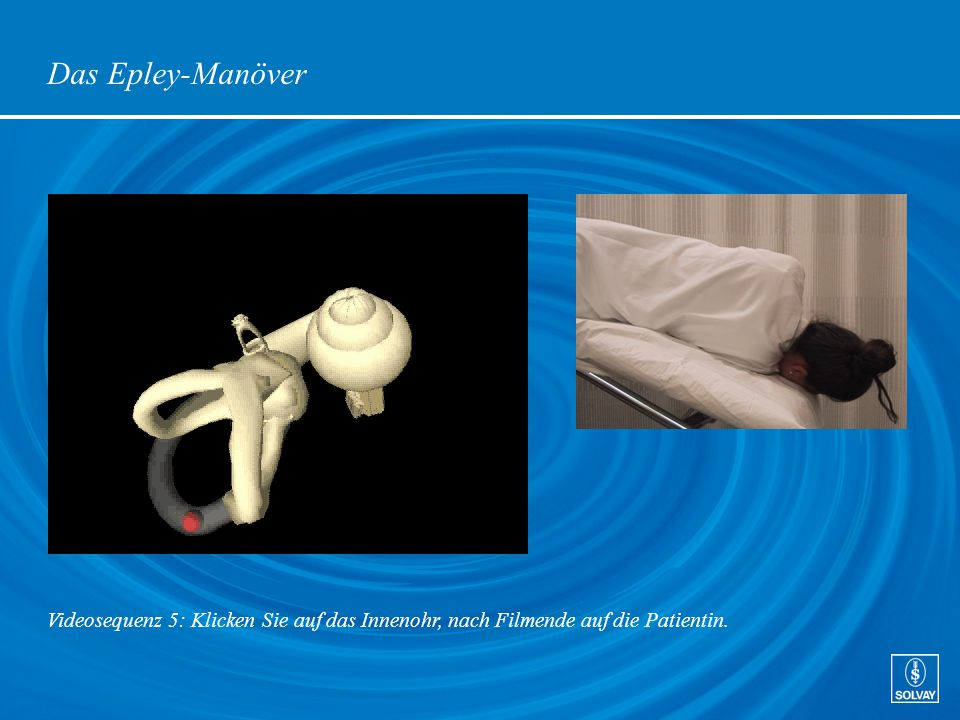 Das Epley-Manöver Videosequenz 5: Klicken Sie auf das Innenohr, nach Filmende auf die Patientin.