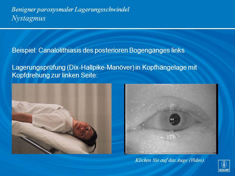 Benigner paroxysmaler Lagerungsschwindel Nystagmus