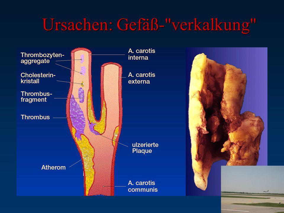 Ursachen: Gefäß- verkalkung