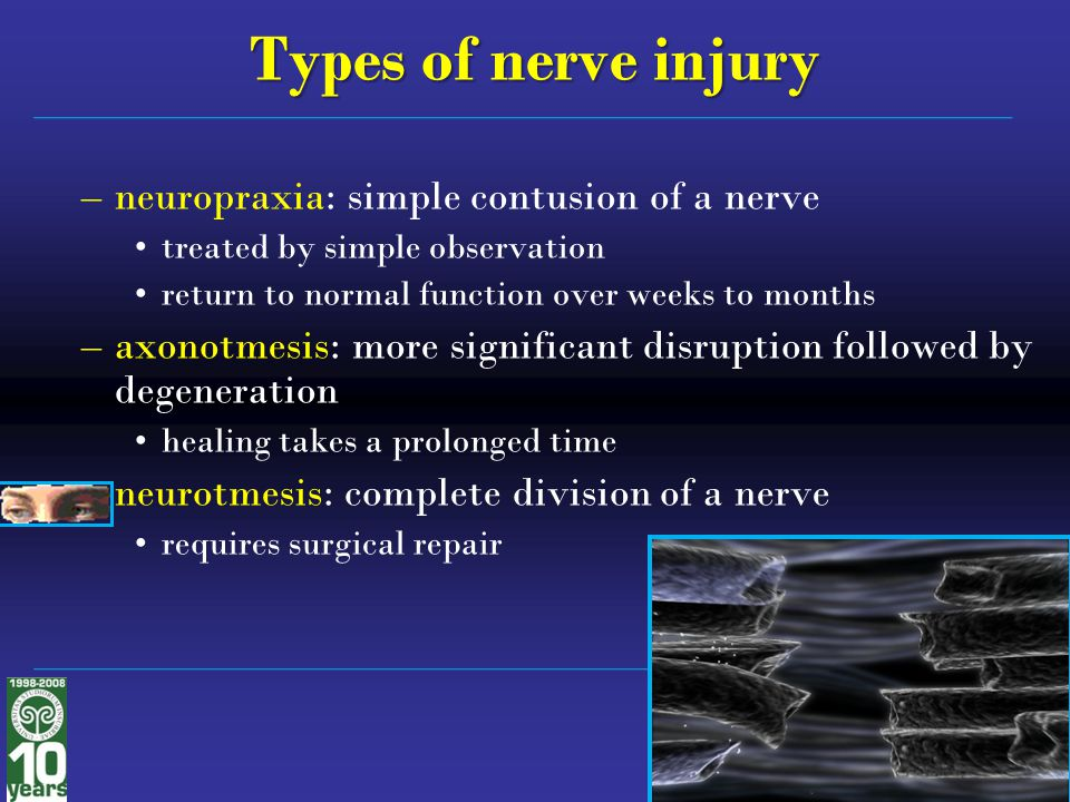 Types of nerve injury neuropraxia: simple contusion of a nerve