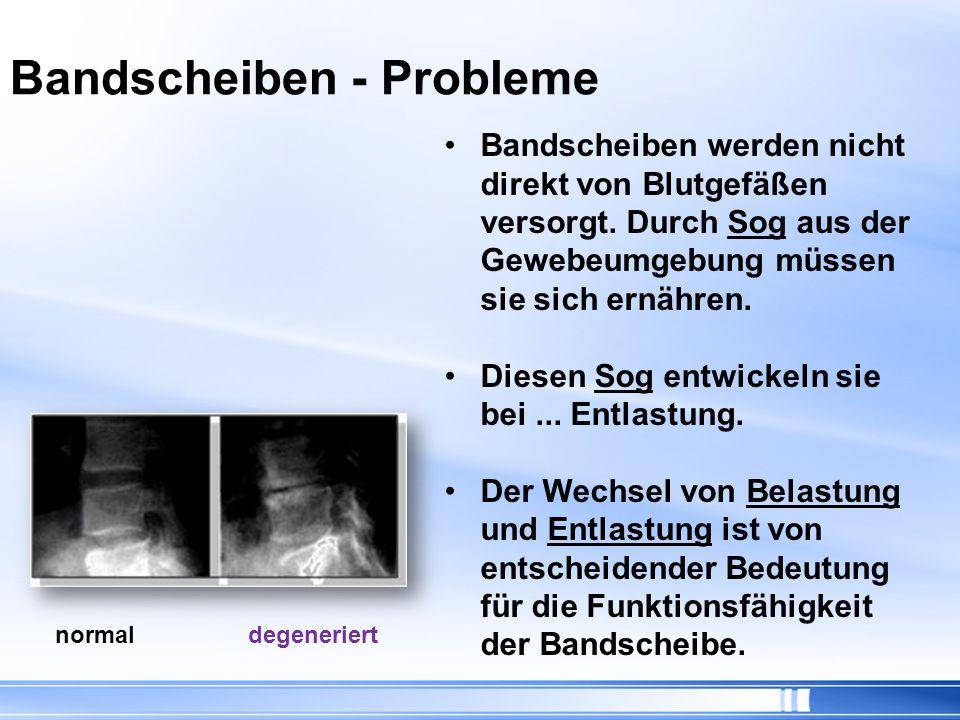 Bandscheiben - Probleme