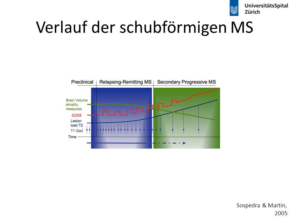 Verlauf der schubförmigen MS
