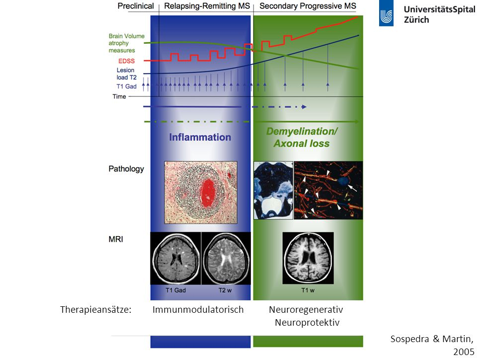 Therapieansätze: Immunmodulatorisch Neuroregenerativ
