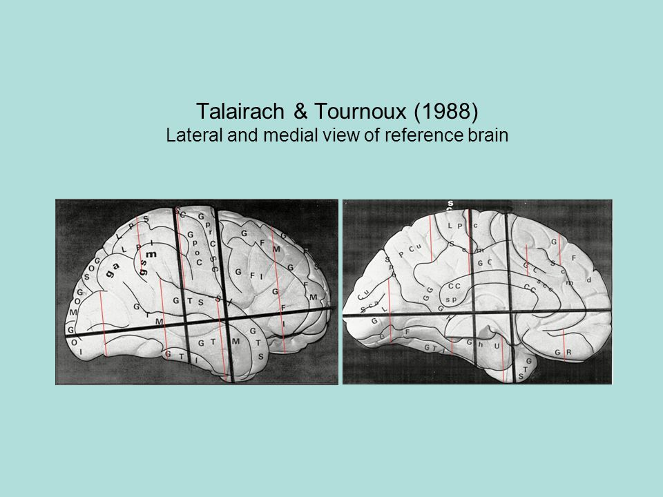 Talairach & Tournoux (1988) Lateral and medial view of reference brain