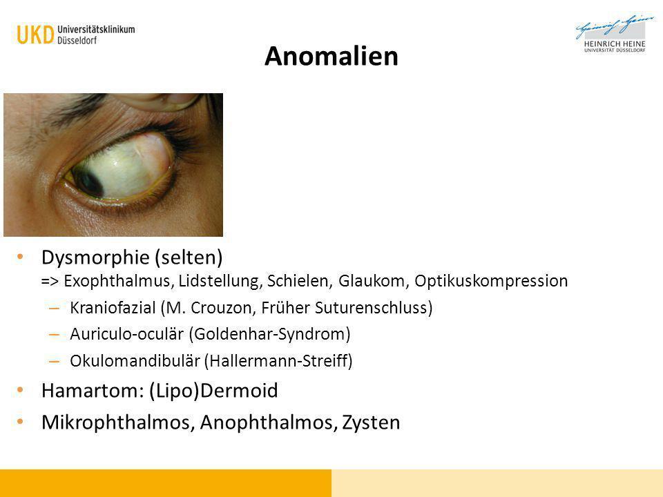 Anomalien Dysmorphie (selten) => Exophthalmus, Lidstellung, Schielen, Glaukom, Optikuskompression. Kraniofazial (M. Crouzon, Früher Suturenschluss)