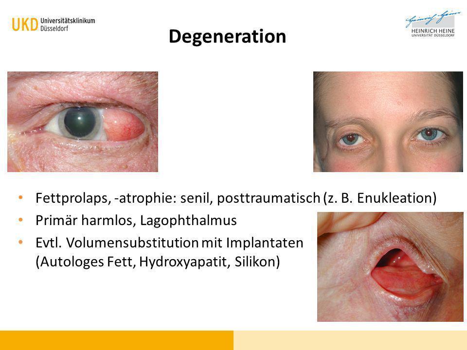 Degeneration Fettprolaps, -atrophie: senil, posttraumatisch (z. B. Enukleation) Primär harmlos, Lagophthalmus.