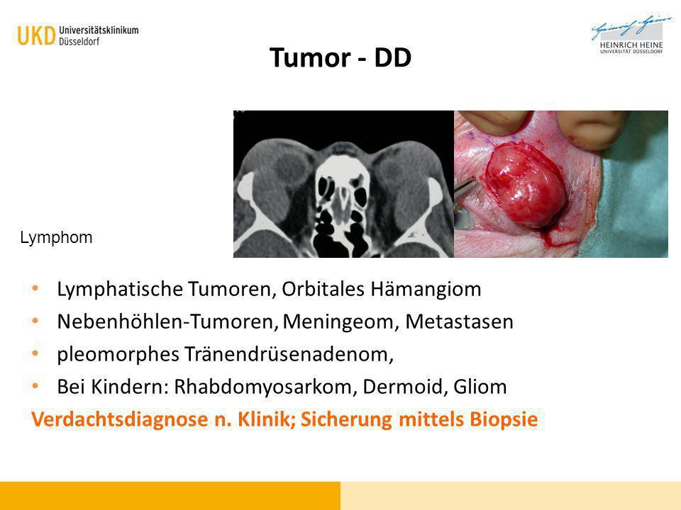 Tumor - DD Lymphatische Tumoren, Orbitales Hämangiom
