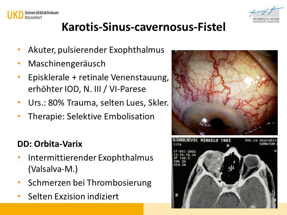 Karotis-Sinus-cavernosus-Fistel