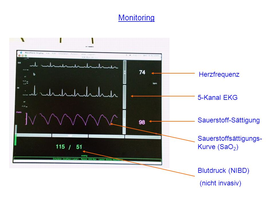 Monitoring Herzfrequenz 5-Kanal EKG Sauerstoff-Sättigung
