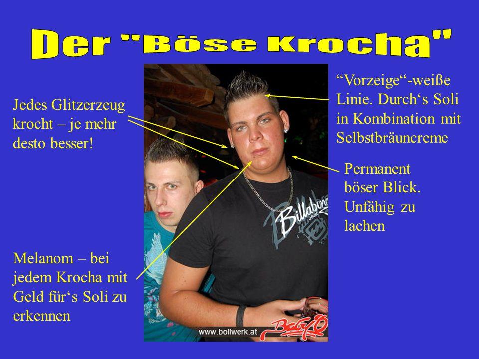 Der Böse Krocha Vorzeige -weiße Linie. Durch's Soli in Kombination mit Selbstbräuncreme. Jedes Glitzerzeug krocht – je mehr desto besser!
