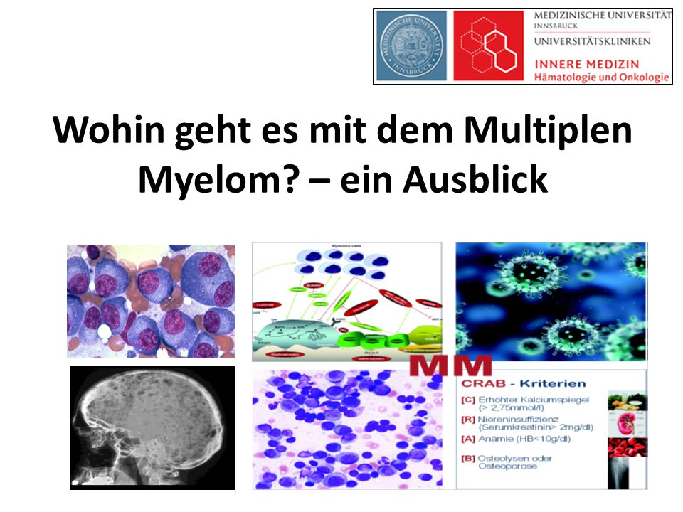 Wohin geht es mit dem Multiplen Myelom – ein Ausblick