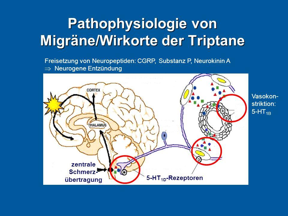 Pathophysiologie von Migräne/Wirkorte der Triptane