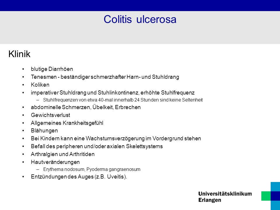 Colitis ulcerosa Klinik blutige Diarrhöen