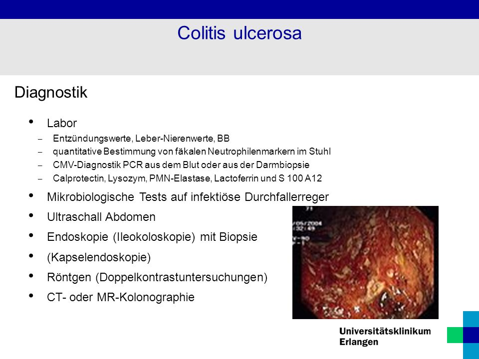 Colitis ulcerosa Diagnostik Labor