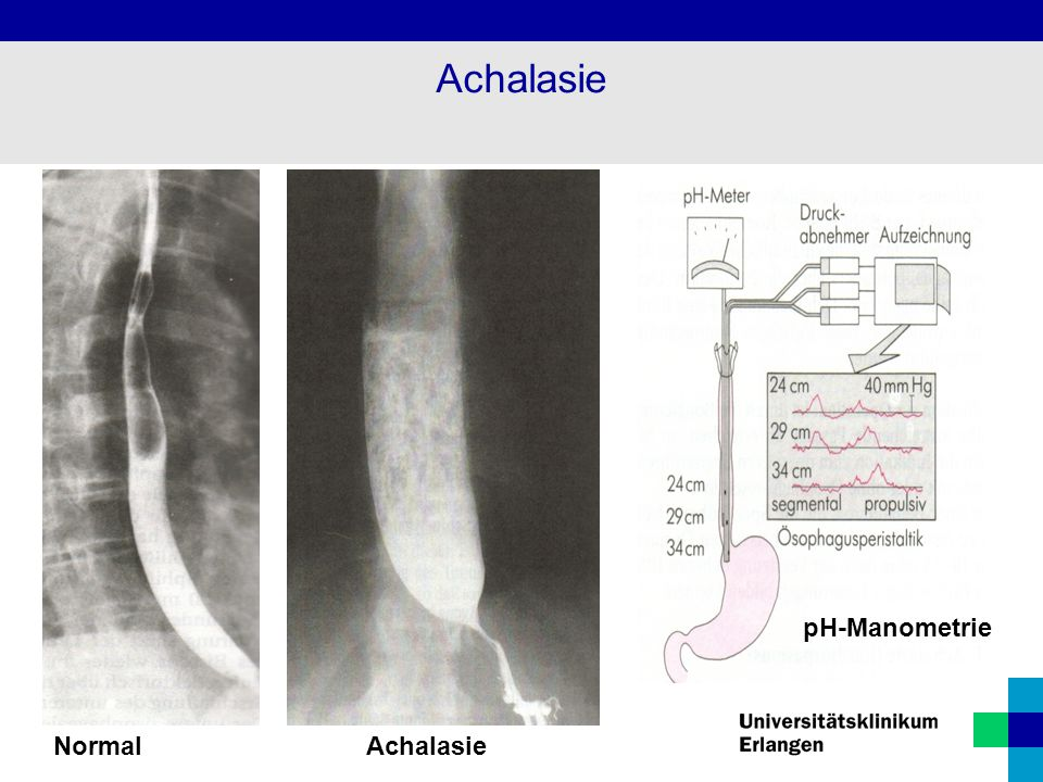 Achalasie pH-Manometrie Normal Achalasie