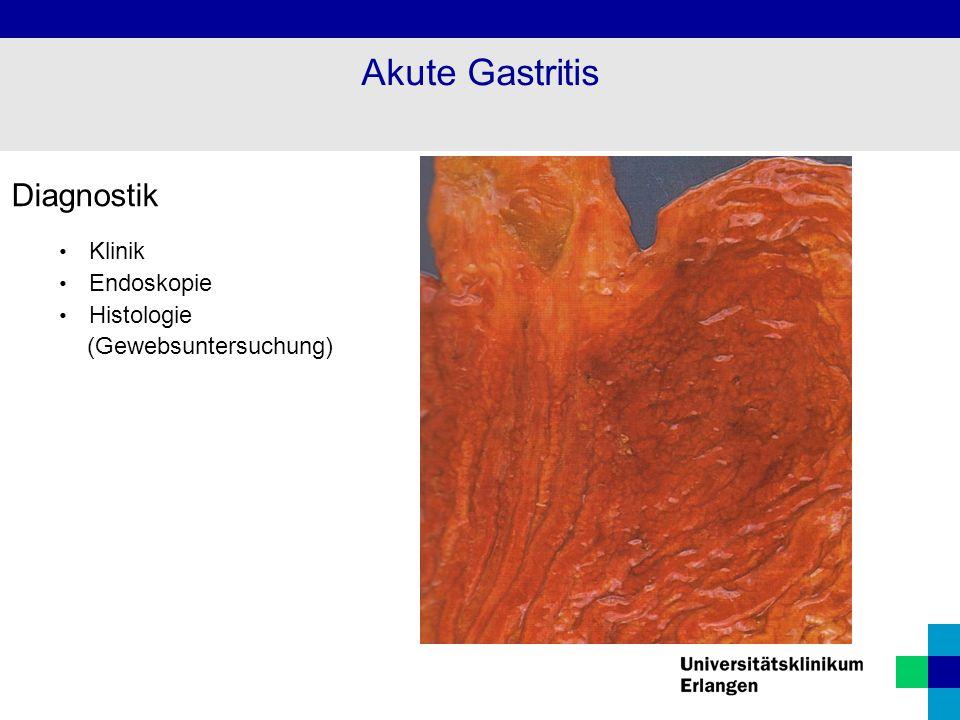 Akute Gastritis Diagnostik Klinik Endoskopie Histologie